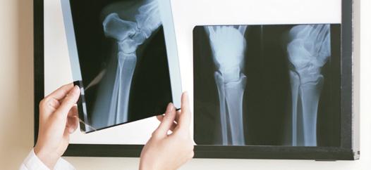 podólogos alicante en jornada cirugía mínima incisión